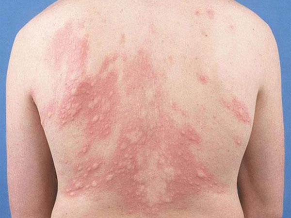 Chăn ga gối đệm bẩn gây nên những bệnh về da